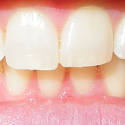 happy dental locul unde zambetul tau devine perfect