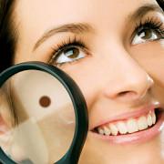 alunitele risc de cancer de piele