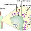 anticorpii rechinilor reprezinta cheia in tratarea cancerului la san