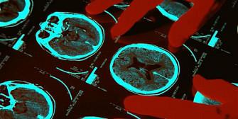 creierul copilului trebuie scanat pentru a identifica viitorul criminal