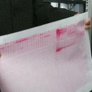 turcia seism cu magnitudinea 5 in estul tarii